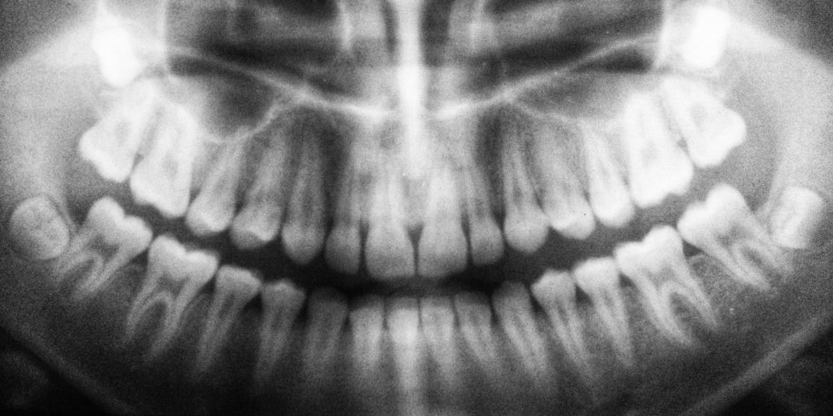 stop grinding teeth
